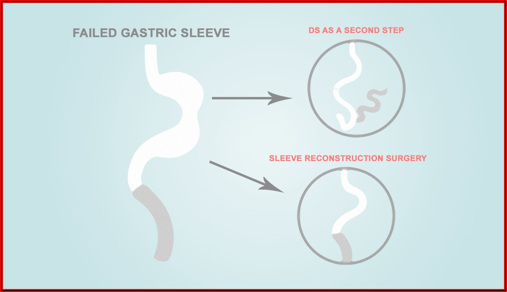 Gastric Sleeve Weight Loss Timeline Calculator