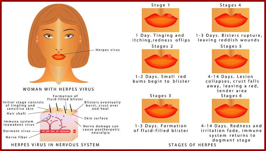 Genital Herpes First Outbreak Timeline