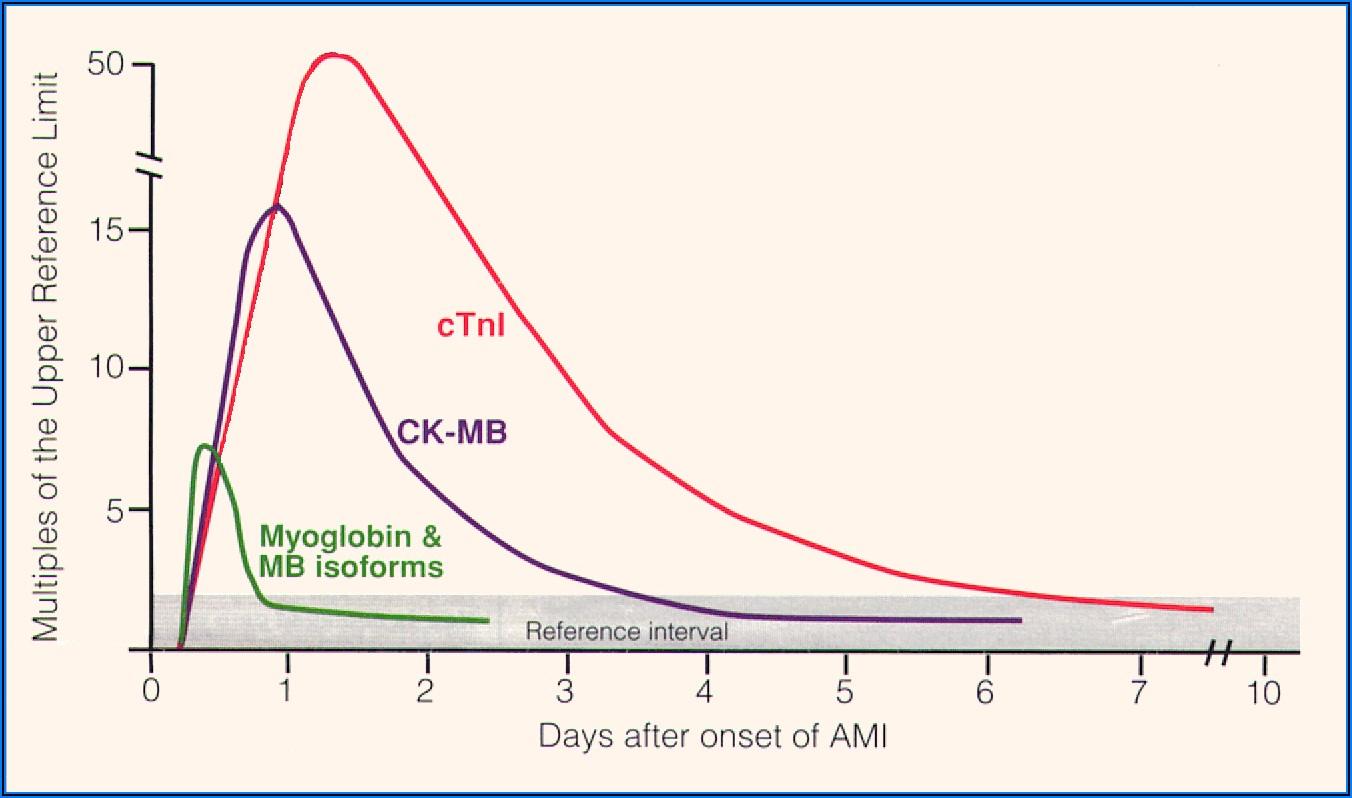 Cardiac Enzymes Graph Timeline