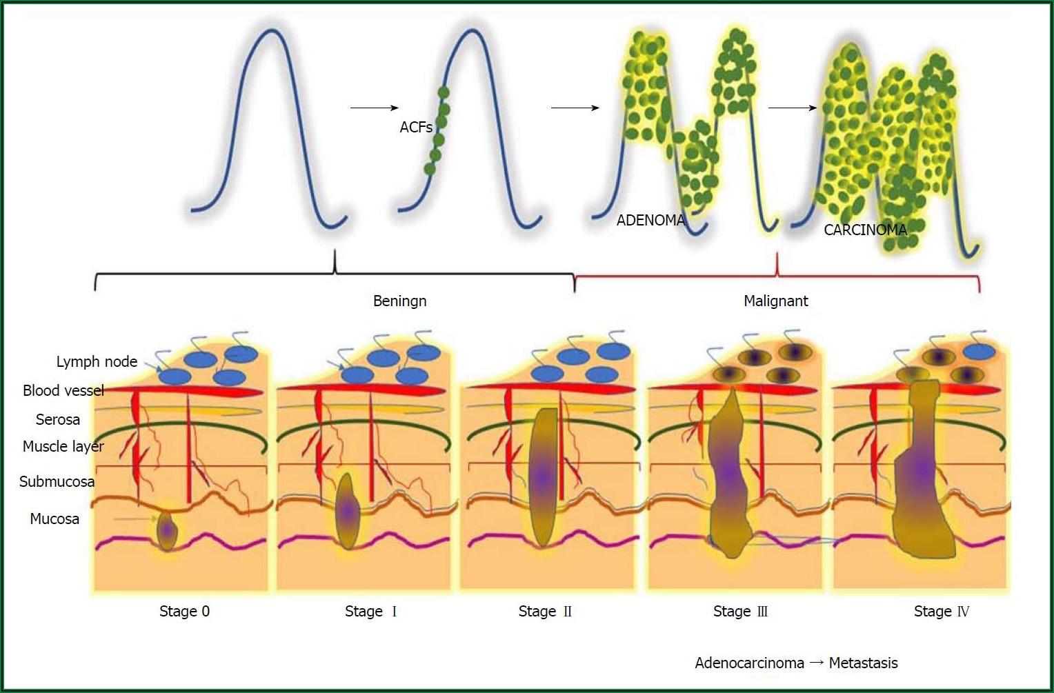 Colon Cancer Development Timeline