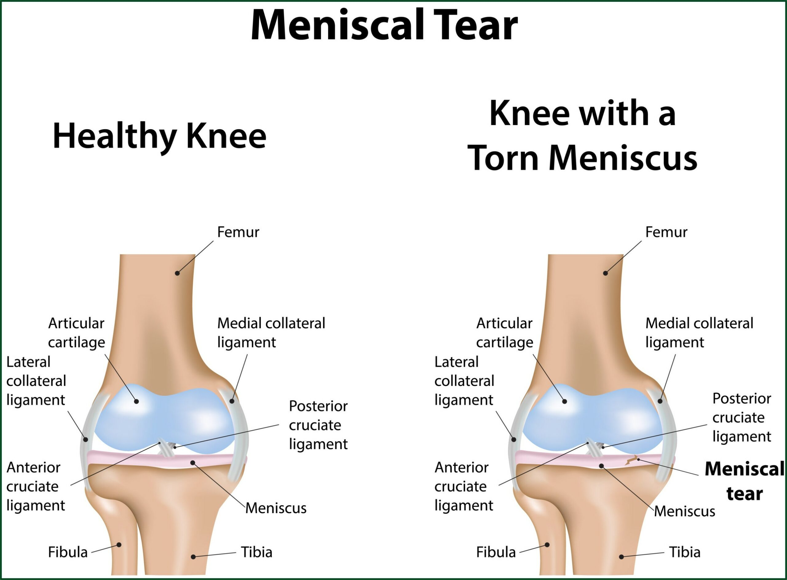 Knee Surgery Recovery Time Torn Meniscus