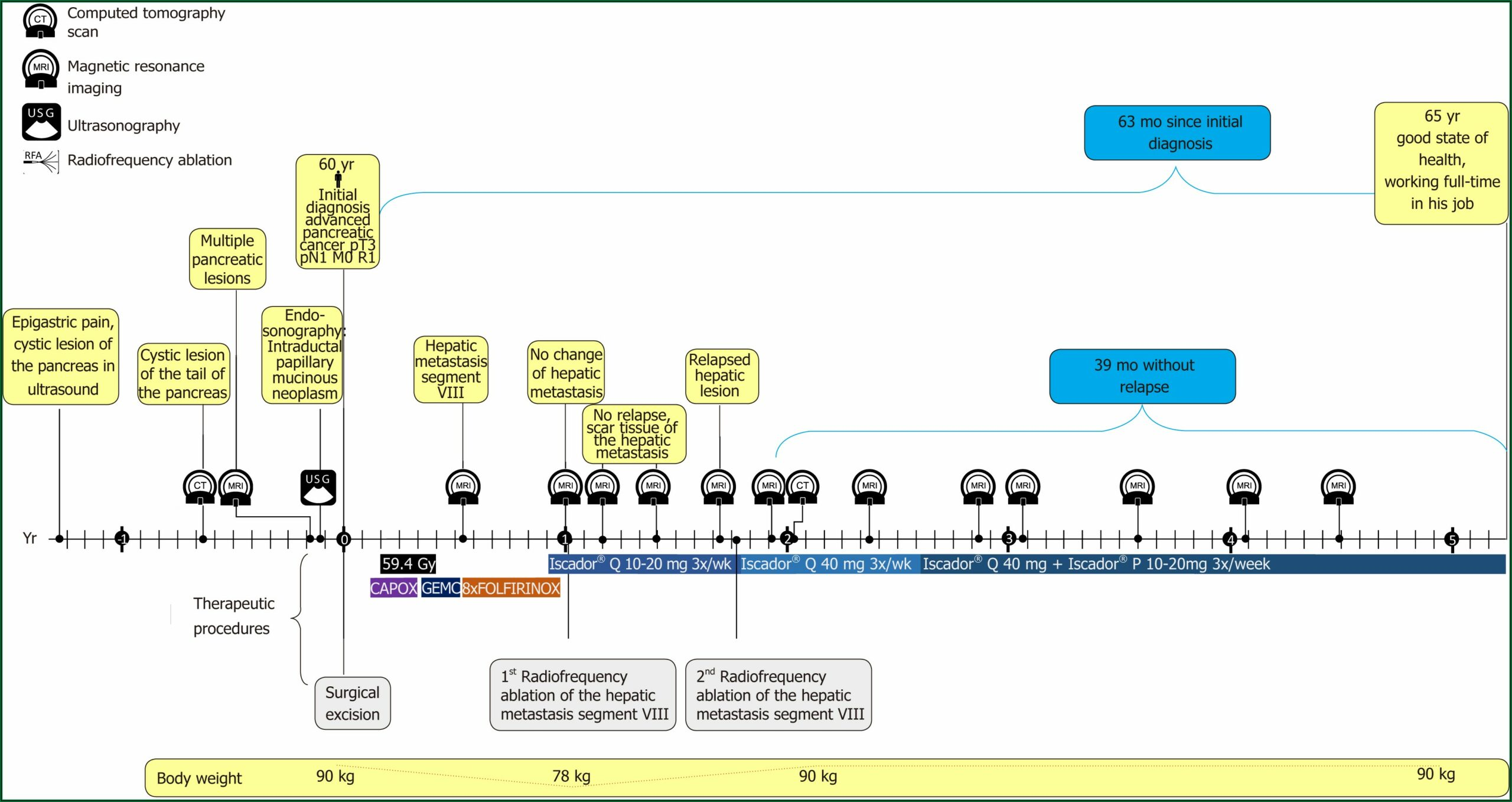 Stage 4 Pancreatic Cancer Hospice Timeline