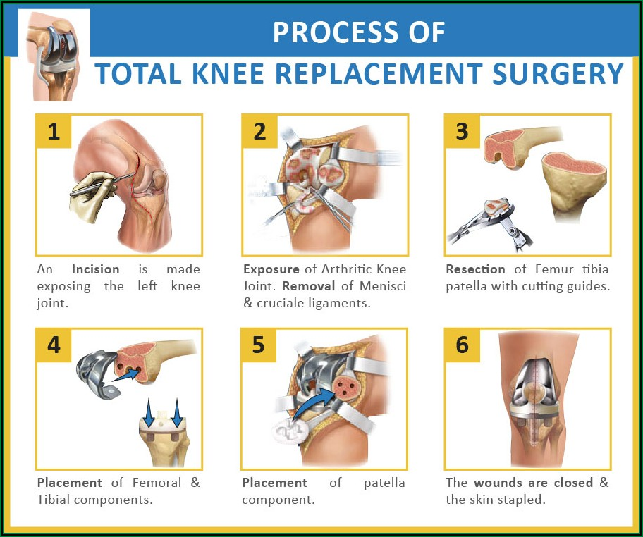 Total Knee Replacement Healing Process