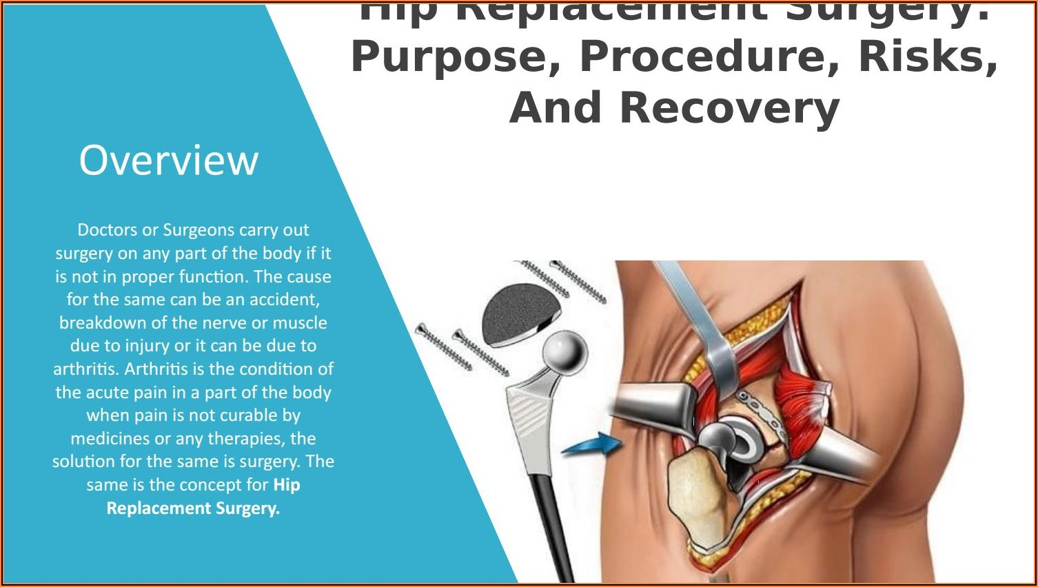 Hip Replacement Surgery Recovery Time Frame