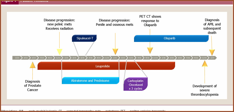 Prostate Cancer Stages Timeline