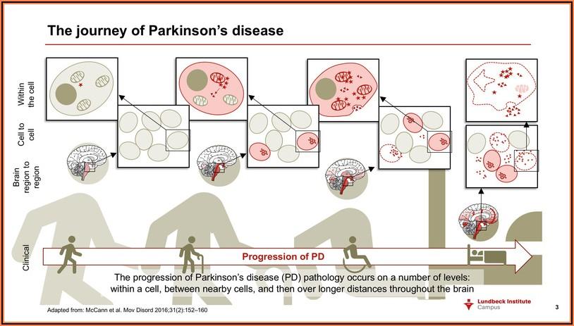 Stages Of Parkinson's Disease Timeline